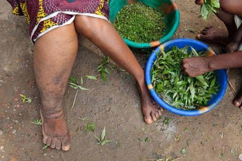 an introduction to filariasis more commonly known as elephantiasis Lymphatic filariasis (lf), commonly known as elephantiasis is a disfiguring and   albendazole with dec was introduced in 2007 and scaled up in all endemic   mass drug administration (mda)- for 5 years or more to reduce the number of.